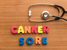 How to get rid of canker sores